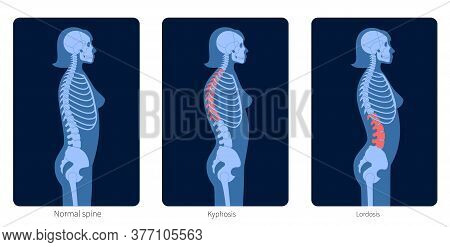 Normal Spine, Lordosis And Kyphosis. Scoliosis In Female Body. Xray Flat Vector Illustration. Backbo