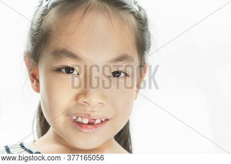 Cute Little Girl Smiling And Showing Her First Losing Milk Teeth. Head Shot Asian Little Girl After