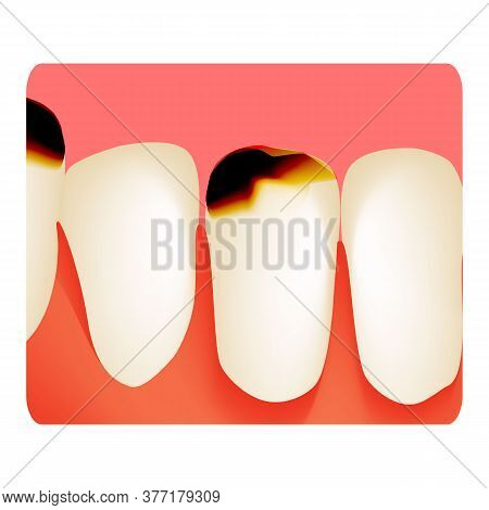 Dental Caries. Tooth Decay. Caries Infographics. Illustration On Isolated Background.