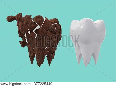 Dirty Brown Molar And Clean White Tooth On Blue Backdrop. Tooth Plaque Cleansing Concept. 3d Illustr