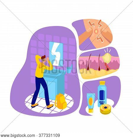 Acne Flat Concept Vector Illustration. Dermatology Problem. Cosmetology For Skin Care. Unhealthy Fac