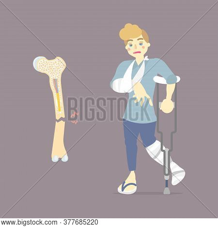Sad Patient With Cast On Broken Leg And Arm Bone Holding Crutch, Walking Aid, Internal Organs Body P