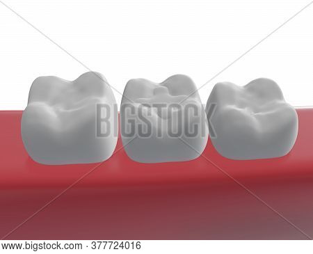 Three Molar Teeth In The Gum, Polymer Filling Of A Tooth In The Middle, 3d Render
