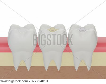 Teeth With Gold, Amalgam And Composite Inlay Dental Filling, Three Molar Teeth In The Gum. Different