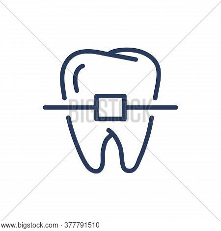 Teeth Braces Thin Line Icon. Orthodontic Brackets, Molar Isolated Outline Sign. Dental Care, Orthodo