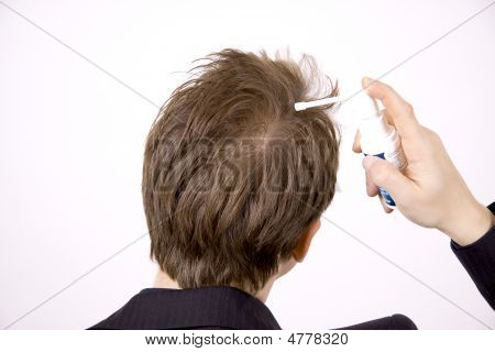 Premature Hairloss
