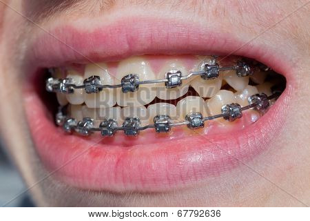 Mouth with bracket