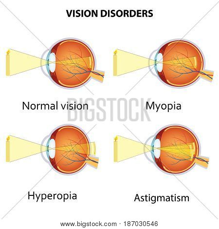 Common vision disorders. Astigmatism, Myopia and Hyperopia