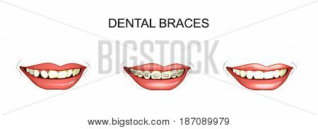 vector illustration of dental braces. dental alignment