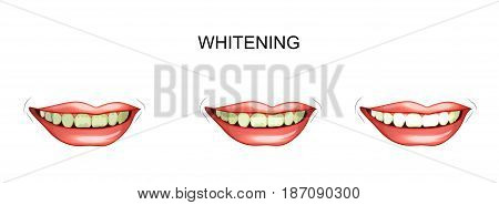 vector illustration of teeth whitening. cleaning plaque