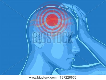 headache. medically vector illustration of headache/ migraine
