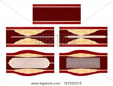Stent angioplasty ( The treatment to cure the cholesterol atherosclerosis in blood vessel ) vector