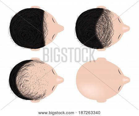 type of baldness , bald head vector . no hair