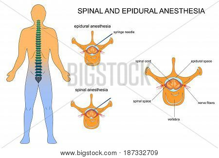 vector illustration of epidural and spinal anaesthesia