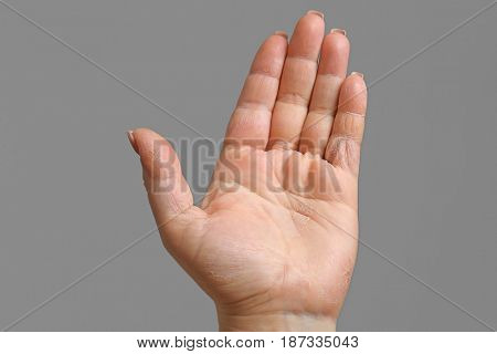 Female hand with dermatitis on gray background