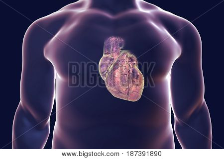 Human heart with heart vessles inside human body, 3D illustration