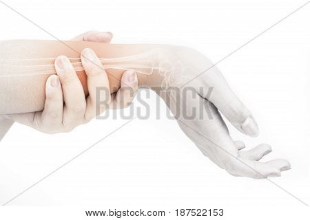 forearm bones injury white background leg pain