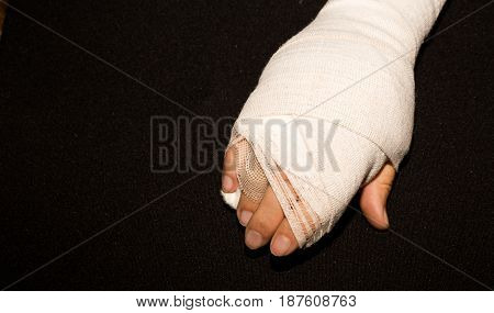 Hand in a cast after hand surgery.