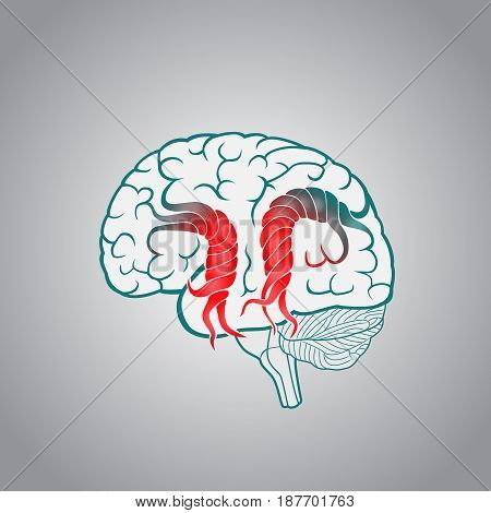 Brain with the twisted convolutions, of the destruction of the brain, stroke, memory, disruption of the normal activities of the brain