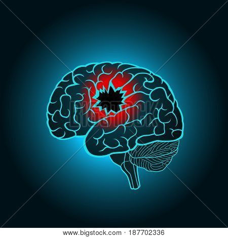 A brain with a hole, the concept of destruction of the brain, memory, stroke