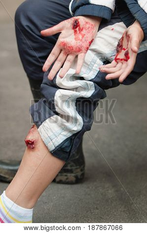 Gore injuries color image close up view human leg