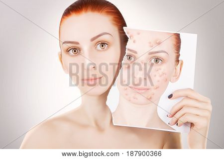 acne problems red haired woman portrait on grey