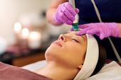 people, beauty, cosmetology, exfoliation and technology concept - beautiful young woman having microdermabrasion facial treatment with crystals in spa poster