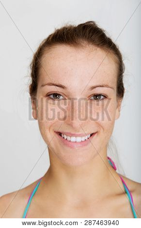 Close view of woman face with freckles on white background. Sensitive skin.