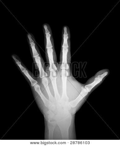 X-ray Of Human Hand