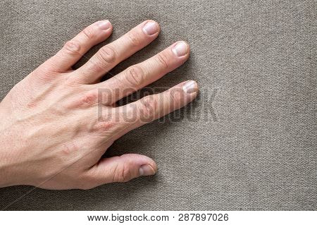 Close-up of male masculine hand with rough skin and short fingernails resting on flat copy space background, top view. Manual labor and hands care concept. poster