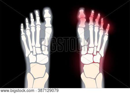 X Ray Of Normal Ankle And Pain In Arthritic Joint. Rheumatoid Arthritis Disease. Human Foot Bone Ana