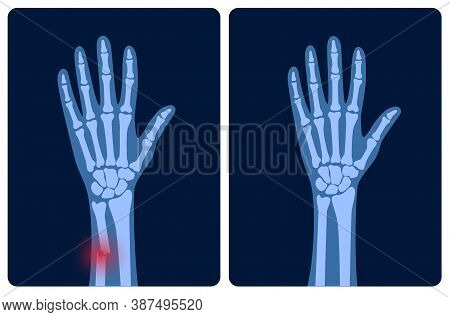 X Ray Of Arm Fracture With Red Pain Points And Normal Arm. Broken Hand With Inner Closed Radius Type