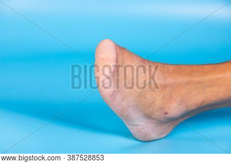 Amputation Of All Toes Of A Diabetic Mans Foot, Diabetic Foot, Shampoo. Diabetes. Close-up. Selectiv