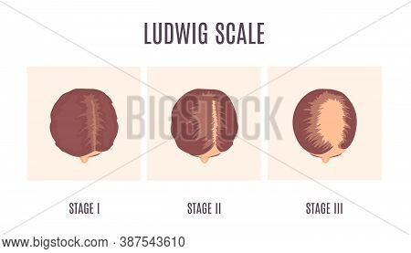 Ludwig Scale Of Baldness In Women Infographics