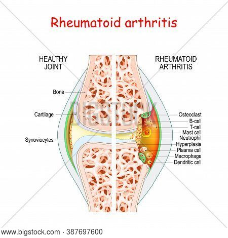 Rheumatoid Arthritis. Healthy And Damage Joint. Close-up Of Bone, Cartilage, And Cells In A Joint Ca