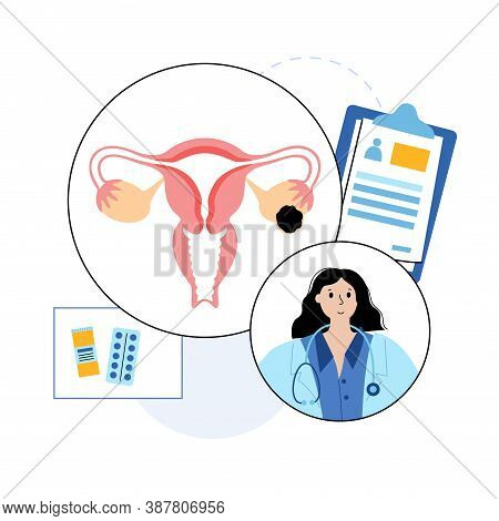 Uterus Anatomy, Ovarian Cyst. Cancer And Tumor Disease. Woman Health Medicine. Doctor Gynecologist A