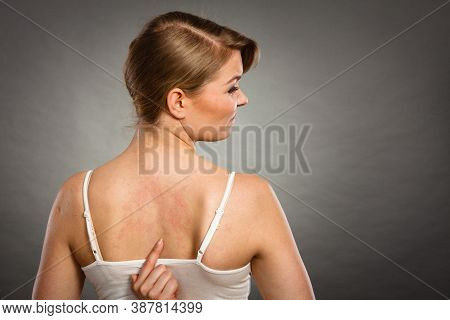 Health Problem, Skin Diseases. Young Woman Showing Her Itchy Back With Allergy Rash Urticaria Sympto