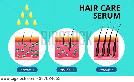 Hair Care Serum , Hair Transplantation, Vector Design