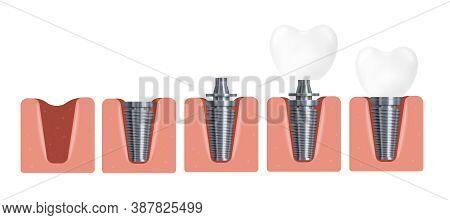 3d Realistic Vector Illustration Of Dental Implant Installation Steps.