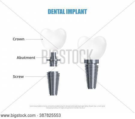 Realistic 3d Vector Illustration Dental Implant Structure