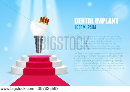 Vector Advertising Banner With Realistic Illustration Dental Implant