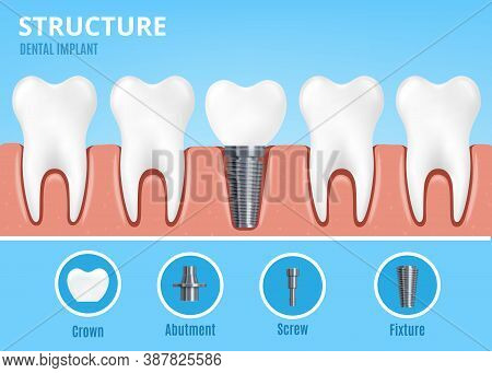 Dental Implant Structure With Fixture, Flat Cartoon Vector Illustration