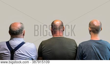 Bald Men Rear View, Head With Hair Loss. The Concept Of Hereditary Hair Loss.