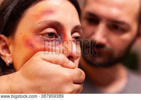 Close Upf Woman With Bruises Because Of Agressive Husband. Violent Aggressive Husband Abusing Injuri
