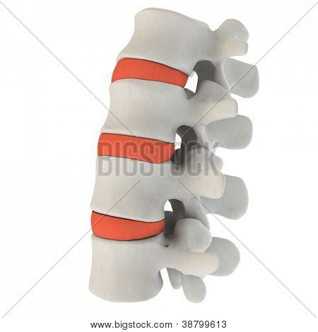 Intervertebral discs in a spine marked with red color