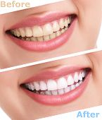 bleaching teeth treatment , close up, isolated on white, before and after poster