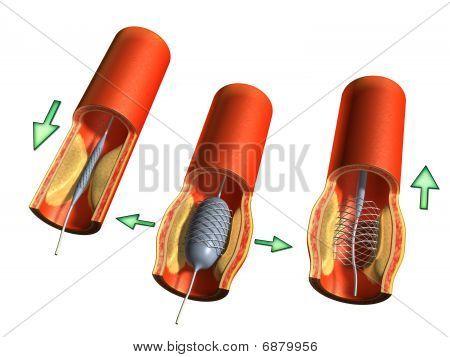 Angioplastic