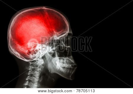 X-ray skull & cervical spine (lateral) with