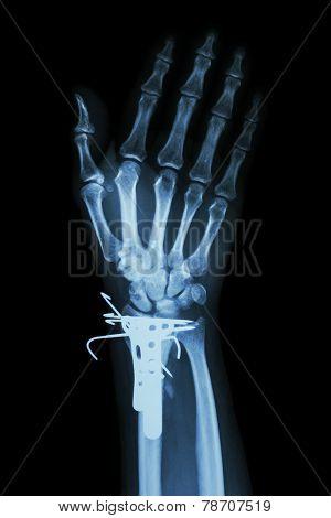 Fracture Distal Radius (forearm's Bone)