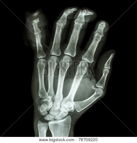 Fracture Distal Pharange Little Finger